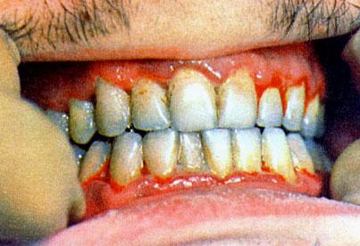 gingivite traitement homéopathique