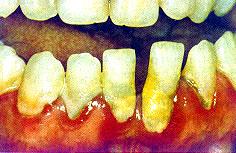 dépôt sur la langue jaunâtre