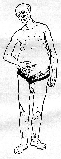 sulfur homéopathie maigrir